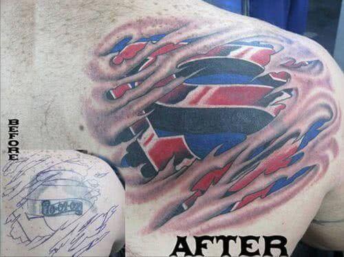 Superman Logo unter der Haut